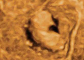 3D超音波では内膜ポリープの形もわかります。